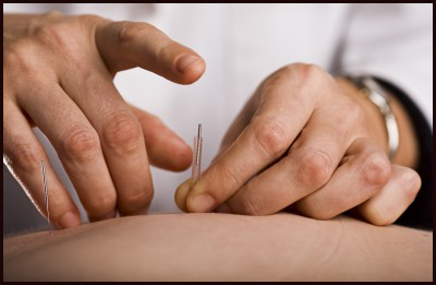 Needling an acupuncture point