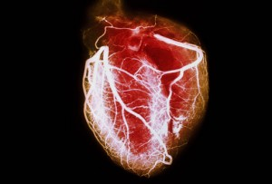 slideshow-visual-guide-to-heart-disease1
