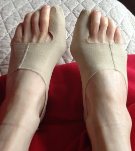 double-bunions on their way to being non-bunions